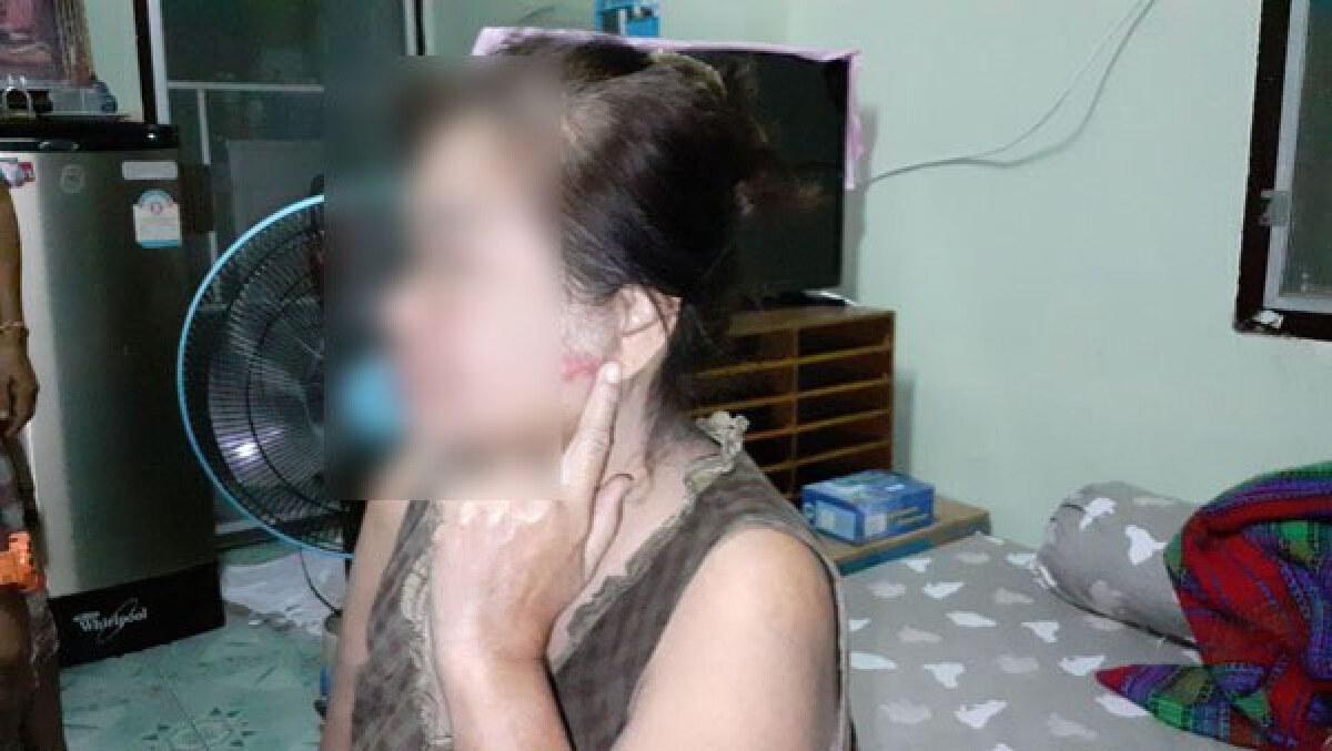 ตามทวงหนี้โหด บุกชกหน้าแม่บ้านในโรงพยาบาลย่านพระประแดง
