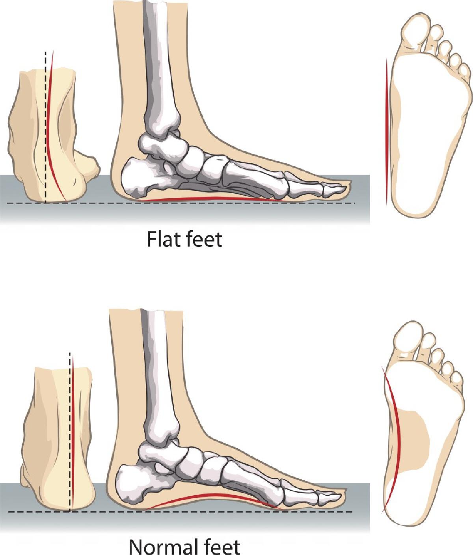 ภาพเปรียบเทียบ เท้าแบน และเท้าปกติ