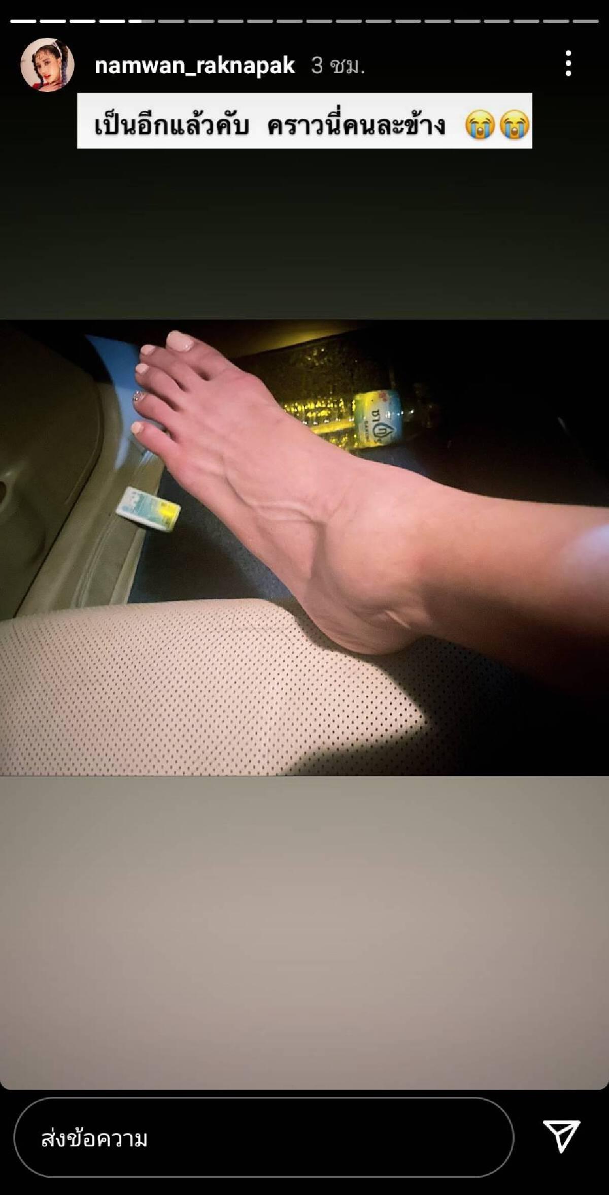 """งดซ่า """"น้ำหวาน"""" เกิดอุบัติเหตุเอ็นข้อเท้าฉีก หมอสั่งพักยาว 2 สัปดาห์"""